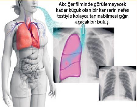 BİR NEFESLE TEŞHİS KOYMA