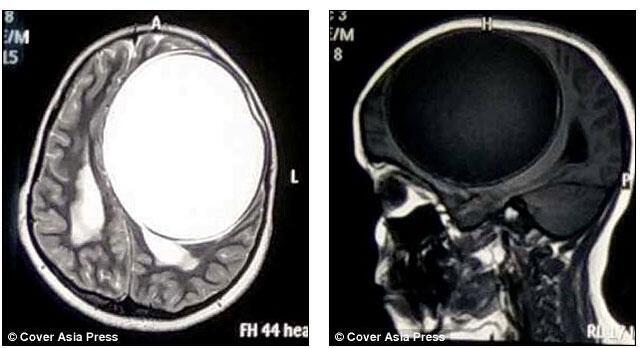 Beyninin yarısında tenya kisti bulundu
