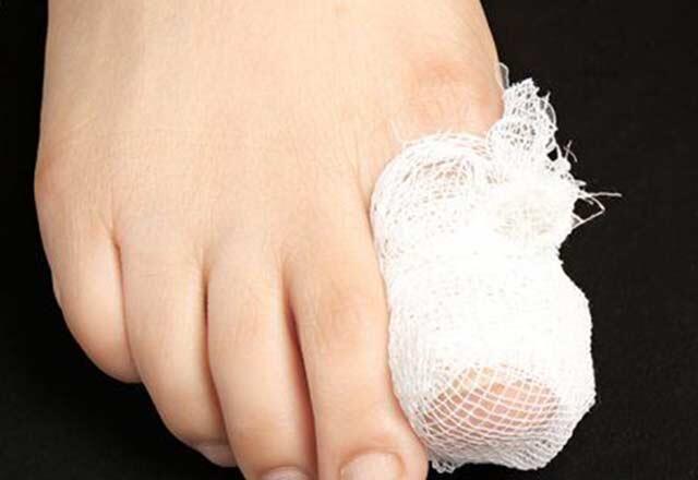 Ayak tırnak mantarına ilaç gibi tavsiyeler