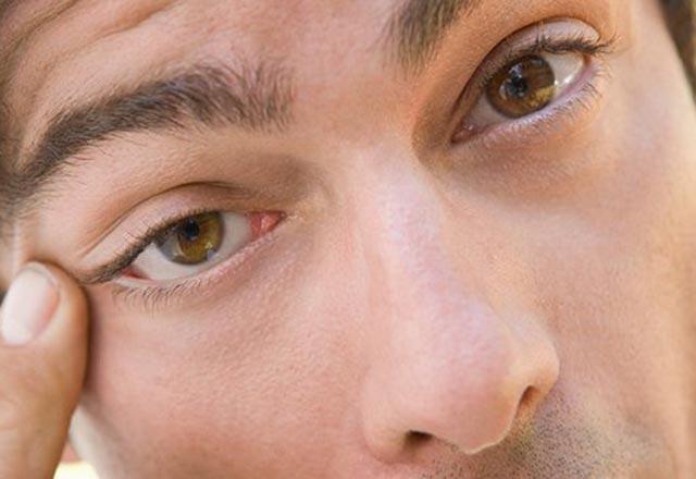 Sağ ve sol göz seğirmesinin nedenleri - Göz seyirmesi neden olur, gözler neden seğirir