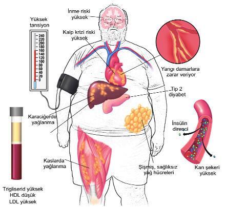 'Sağlıklı Şişman'da kilolar dert değil