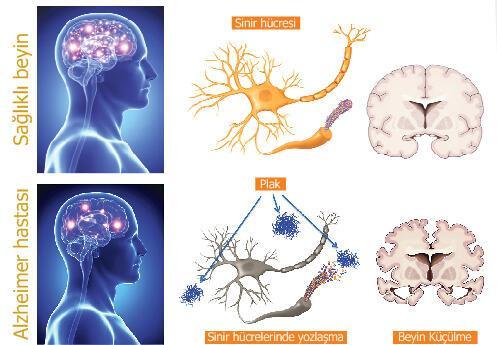 Alzheimer'dan  nasıl korunuruz