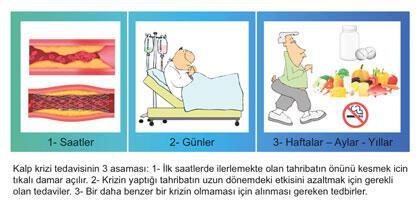 3 aşamada kalp krizi tedavisi