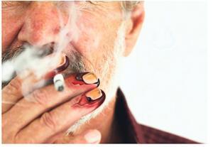 Sigara öldürmezse kesin süründürür