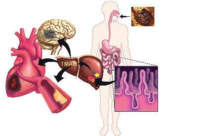 Kalp hastalığında kırmızı et faktörü
