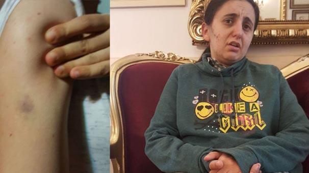 Engelli kıza vurduğu sopa silah sayıldı