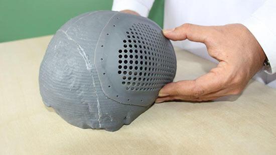 3D yazıcıyla yeniden hayata döndü