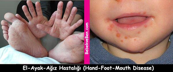 Fotoğraflarla Sık Rastlanan Çocuk Hastalıkları -1