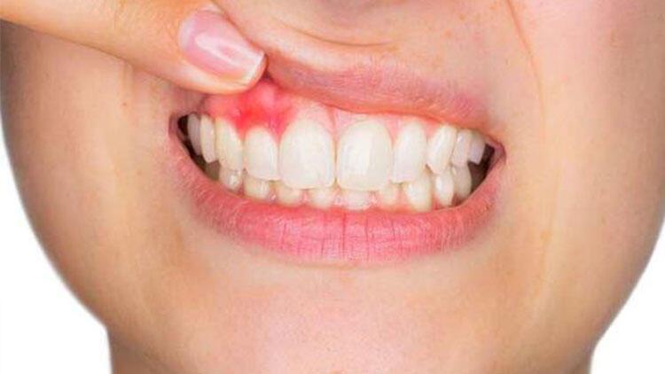 Diş eti kanaması ciddi sağlık sorunlarının habercisi olabilir thumbnail