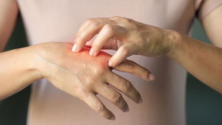 Deri yolma hastalığı 12-16 yaş arasında başlıyor thumbnail