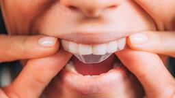 Diş beyazlatıcı jel kullanmak doğru mu, yanlış mı?