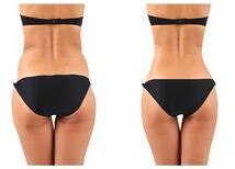 Liposuction Uygulaması ile Vücut Şekillendirme