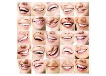Diş Hekimliğinde Gülüş Tasarımı