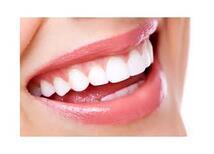 Lamine Dişler İle Güzel Gülüşler