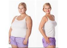 10 Soruda Obezite Cerrahisi Sonrası Estetik