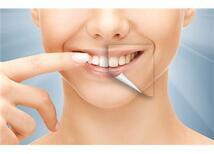 Gerçekliği Olmayan 10 Diş Beyazlatma Efsanesi