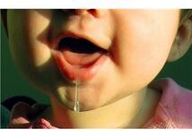 Spastik çocuklarda salya akıntısı tedavisi (Drooling ameliyatı)
