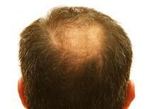 Saç gölgeleme tekniği