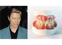 David Bowie'nin Dişleri Kendisi Gibi Farklıydı