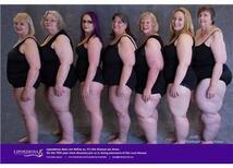 Lipödem ve Obesite Birlikte Görülebilir mi?