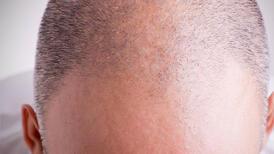 Saç ekimi operasyonu nerede yapılmalı?