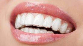 Güncel ortodontik tedavi metodu İnvisalign (şeffaf plak)