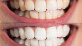 Dişlerin sararmasının sebebi nedir?