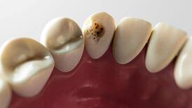 Dişlerimizi çürüklerden nasıl koruruz? - Diş çürüklerinin sebepleri