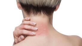 Sivrisinek ısırdığında vücudunuza ne olur?