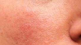 Rozasea (gül hastalığı) tedavisinde kullanılan yöntemler