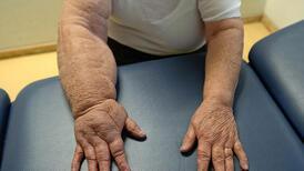 Kollarda ve bacaklarda oluşan şişlikler hangi hastalığın habercisi?