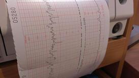 İnme riskine karşı karotis doppler ultrason!
