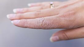 Kuru ve çatlak eller için evde uygulayabileceğiniz 5 doğal çözüm