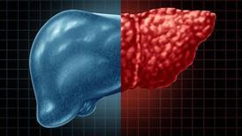 Koronavirüsün sessiz katili: NASH hastalığı