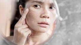 Güneş ışınlarının cilde zararları