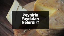 Peynirin Faydaları Nelerdir? Peynirde Hangi Vitaminler Bulunur?