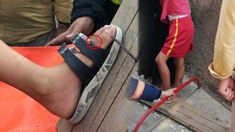 Ayağına çivisi batan tahtayla hastaneye kaldırıldı