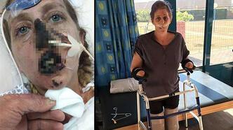 Bir ısırık hayatını mahvetti! 66 ameliyat ve ampütasyon...