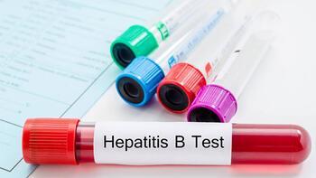 Hepatit B en çok o ülkede görülüyor