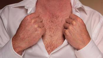 Hormonlu gıdalar erkeklerin memesini büyütüyor!