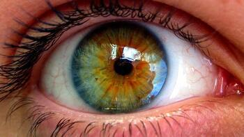 Açık göz renginde sarı nokta hastalığı riski daha fazla