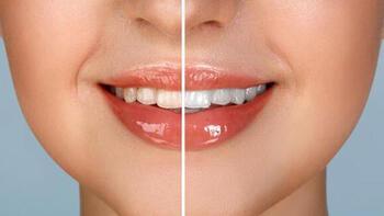 Beyazlatıcı diş macunu seçiminde nelere dikkat edilmeli