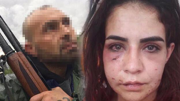 'Ölmek istemiyorum' diyerek yardım istemişti! Cani tutuklandı
