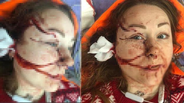 Ukraynalı Hanna'nın yüzü falçatayla parçalanmıştı! Yeni bir hayat kurdu