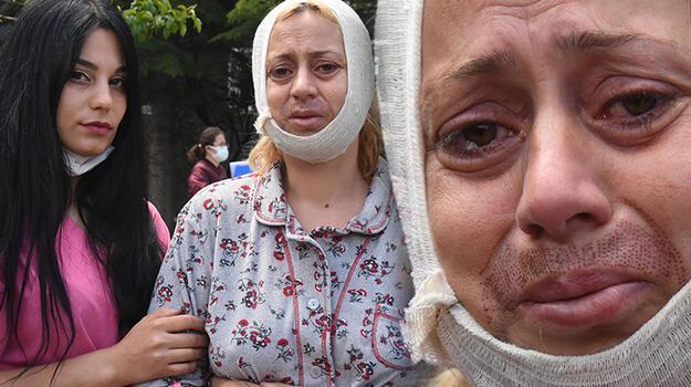 Köpek beslerken saldırıya uğrayan kadın: Tek suçum hayvanları doyurmak