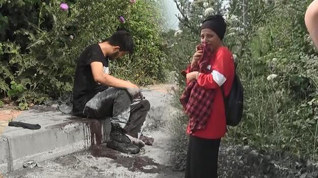 Kız arkadaşıyla yürüyordu! Pompalı tüfekle saldırıya uğradı
