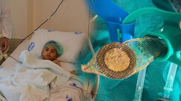 Tayfun'un yuttuğu 50 kuruş, ameliyatla çıkarıldı!