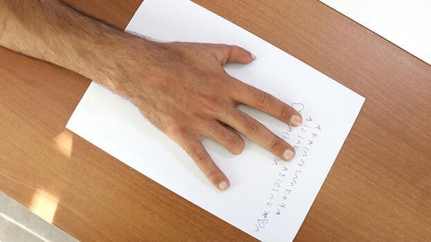 """Türkiye'de yapılan """"parmak nakli"""" literatüre girdi"""