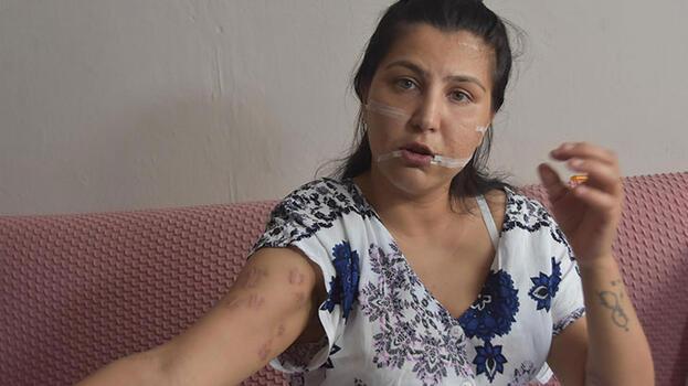 104 yerinden bıçakladığı çocuğunun annesi can çekişirken başında sigara içti