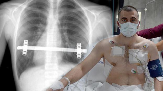 'Kapalı kunduracı göğsü ameliyatı' olan hasta sağlığına kavuştu